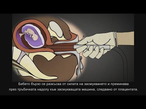 Хирургически аборт в първи триместър: Аспирционен кюретаж с вакуум или Дилатация и кюретаж (Д и К)