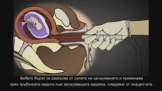 Хирургически аборт в 1-ви триместър: Аспирционен кюретаж с вакуум или Дилатация и кюретаж (Д и К)