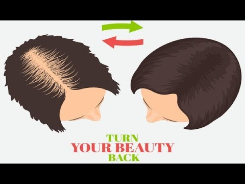 How to Grow Hair on a Bald Head Naturally – Yoga for Baldness Treatment