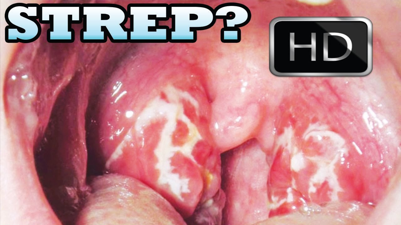 Identify Strep Throat At Home Testing Kit Youtube