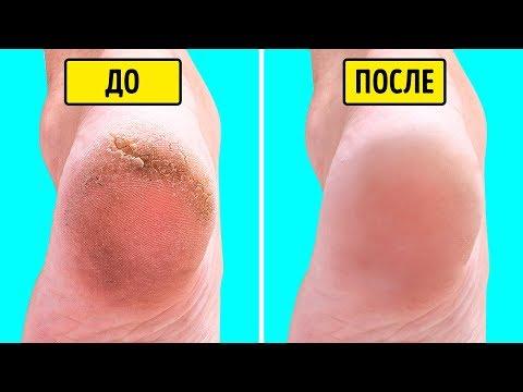 0 - Як зробити шкіру гладкою?