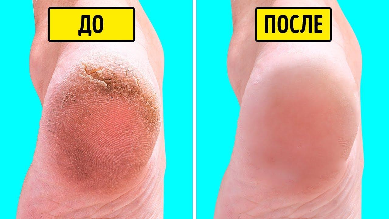 Средства для шелковистой кожи ног