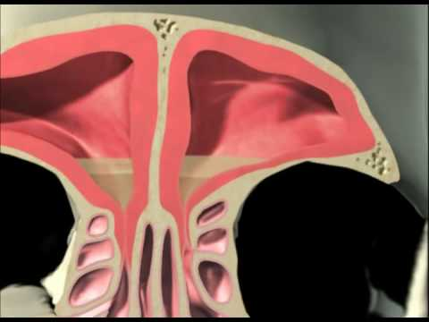 diagram of the human nose vw t4 wiring 3d sinus animation - youtube
