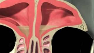 3D Sinus Animation