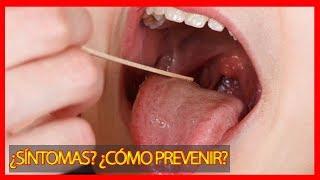 Streptococcus ¿Qué es? ¿Como prevenir, y síntomas? Streptococcus Pyogenes Argentina
