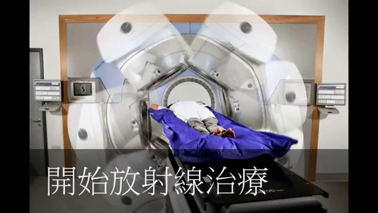 放射線 治療 乳癌
