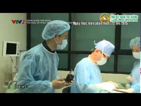 Xem chi tiết quá trình phẫu thuật nâng mũi như thế nào?