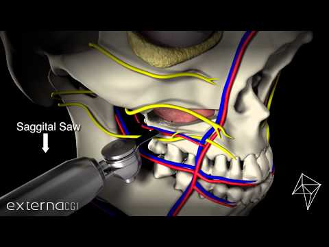 Stryker - Sonopet - Oral Surgery