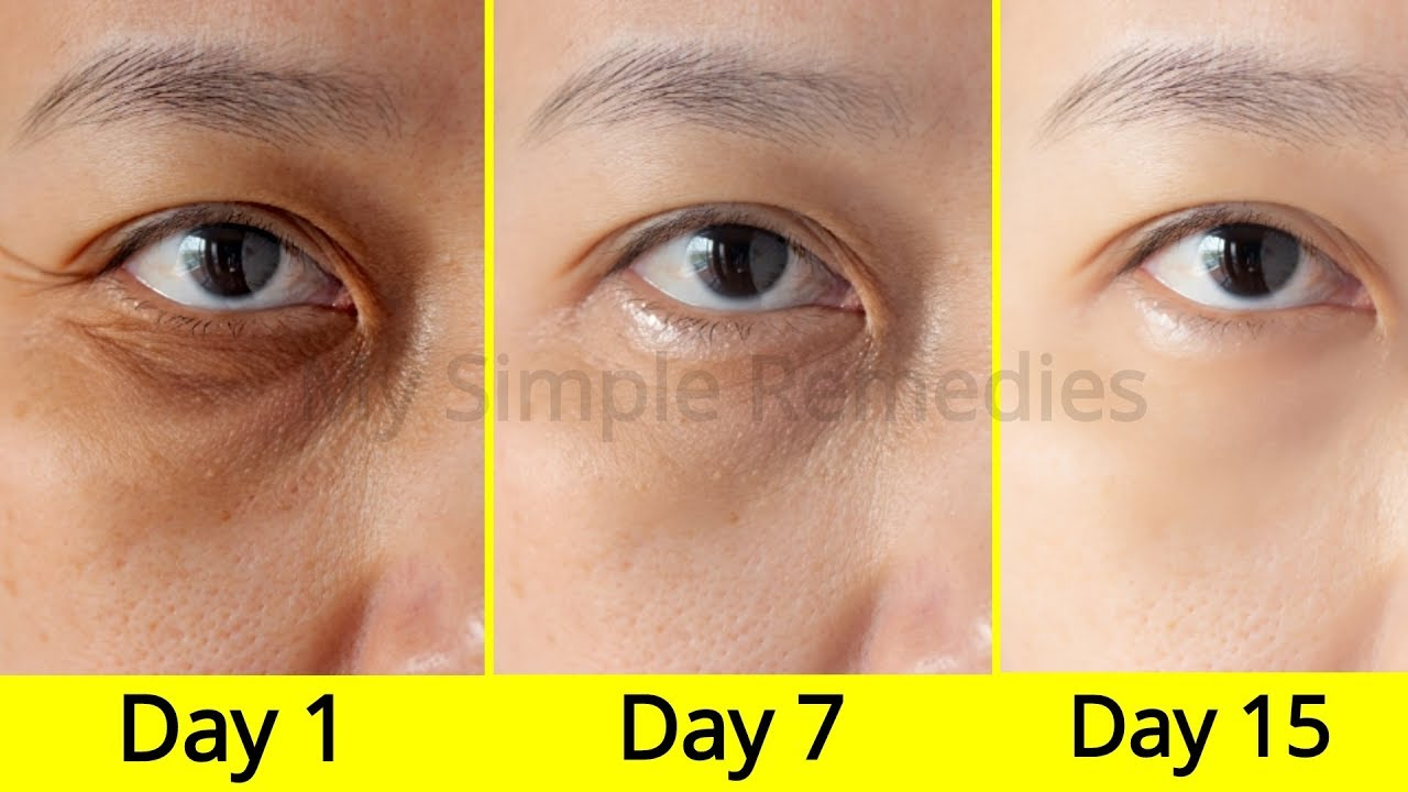 Say GoodBye To Dark Circles & Puffy Eyes With These Simple ...
