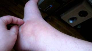 Перелом лодыжки.AVI(поле снятия гипса., 2012-02-22T15:04:51.000Z)