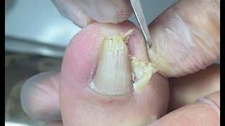 Best painless nail repair method