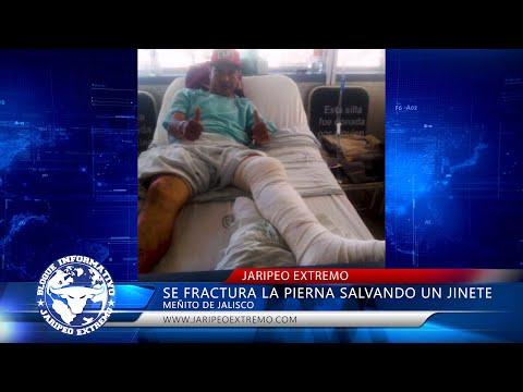 EN 3 PARTES SE FRACTURO LA PIERNA/ BLOQUE INFORMATIVO from YouTube · Duration:  5 minutes 14 seconds