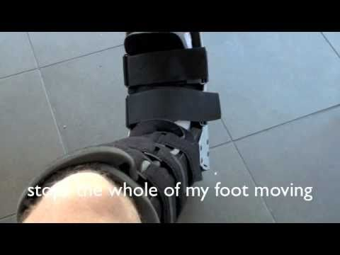 Stress Fracture 2nd Metatarsal