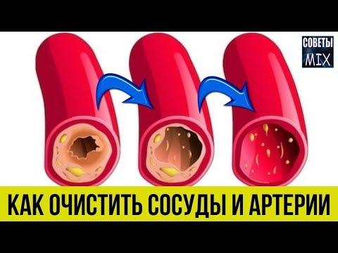 Как просто и легко очистить сосуды и артерии от холестериновых бляшек без таблеток Секрет здоровья