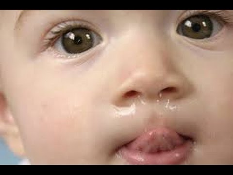 Image Of Messy Face
