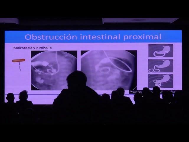 Imagen de la obstrucción intestinal neonatal. Pablo Caro Dominguez