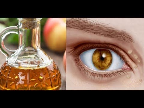 minimize the bumps around your eyes with these home remedies