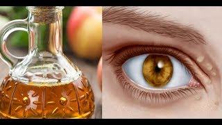 Natural Remedies to Cure Xanthelasma or Cholesterol Deposits Around the Eyes
