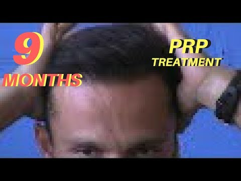 FUE Hair Transplant | 9 MONTHS Post Surgery | PRP Treatment | Los Angeles | Tijuana