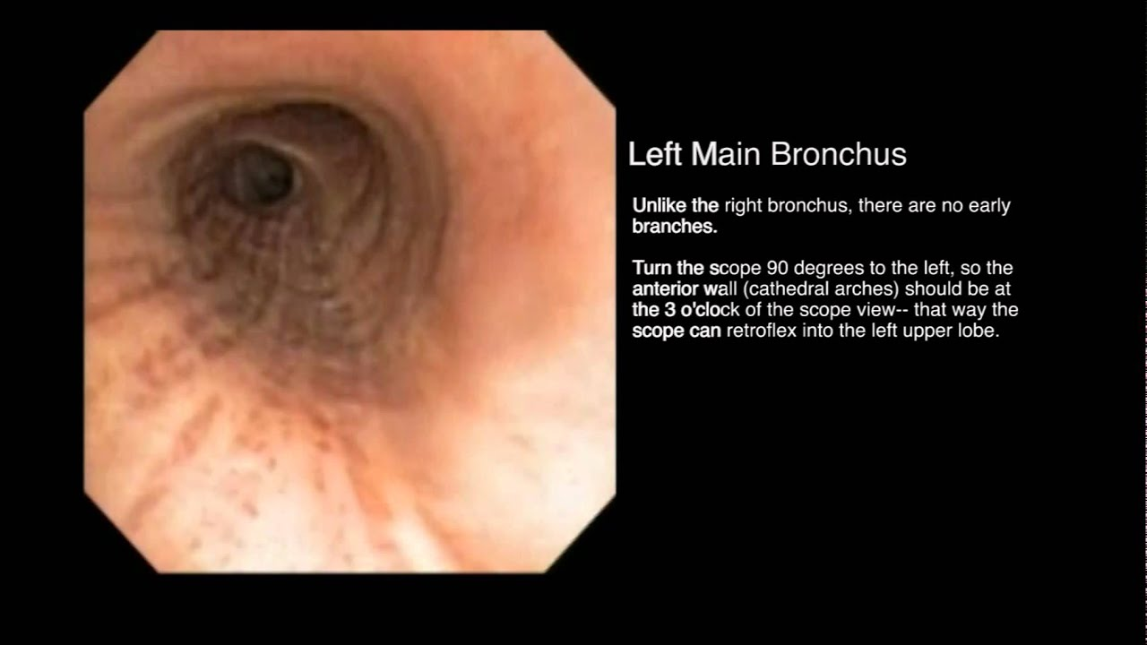 Bronchial Tree Segmental Anatomy From An Endobronchial View Youtube