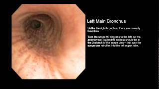 Bronchial Tree: Segmental Anatomy from an Endobronchial View