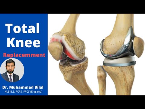 Total Knee Replacement In Lahore Pakistan, Dr. Muhammad Bilal Joint Replacement Orthopedic Surgeon.