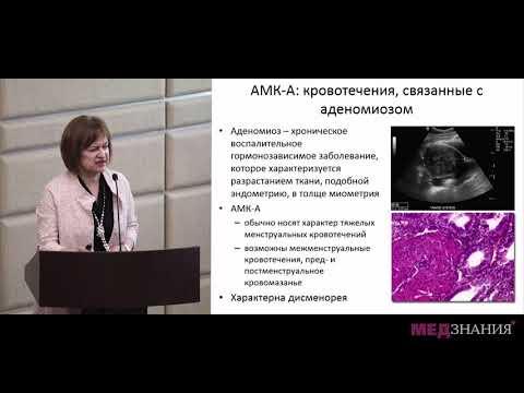4. Аномальные маточные кровотечения в репродуктивном возрасте