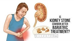 Is kidney stone common after bariatric treatment | Dr. Borude