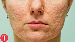 hqdefault - Interesting Facts About Acne