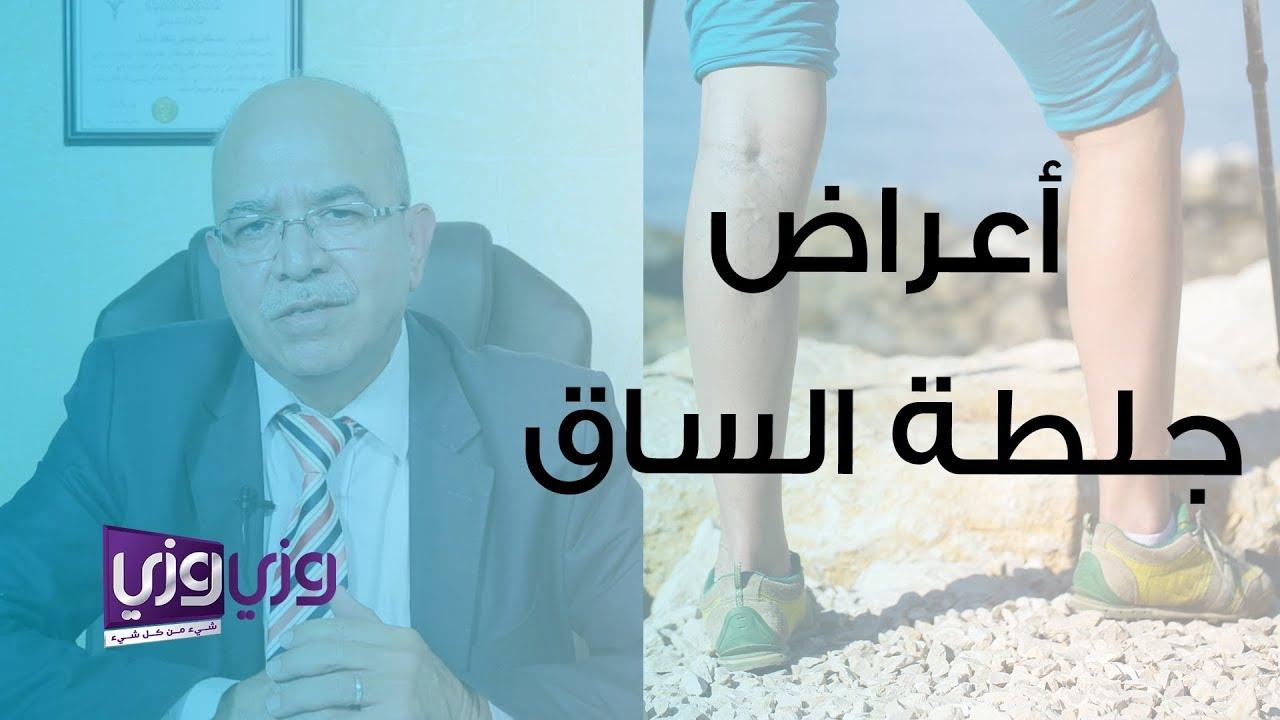 أعراض جلطة الساق وأسبابها Youtube