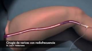 Cirugia de varices con Radiofrecuencia, Dr. Valderrama