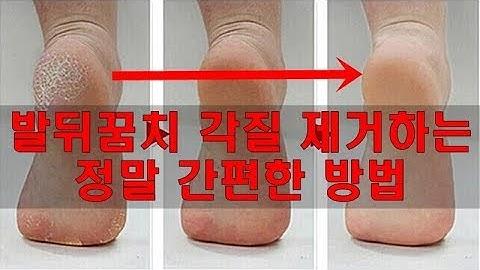 발뒤꿈치 각질 제거 방법