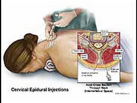 cervical epidural steroid injection technique