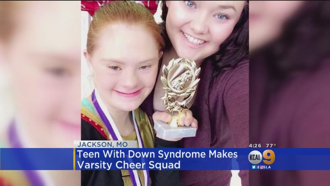 down-syndrome-teenage-girl