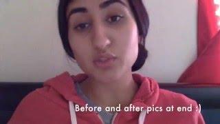 Nose Piercing Bump Finally Gone! -My Story