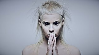 Альбиносы посланники дьявола? почему на них охотятся?