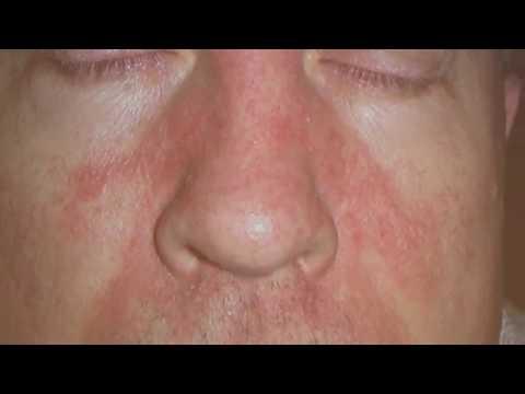 Себорейный дерматит: этиология, патогенез, диагностика и лечение