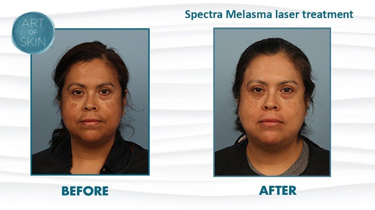 Melasma Laser Toning With Nd Yag Spectra Laser For Brown