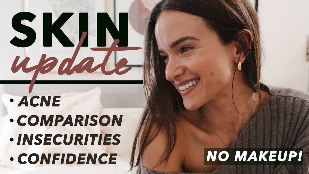 SKIN UPDATE | How revealing my acne struggles changed my life