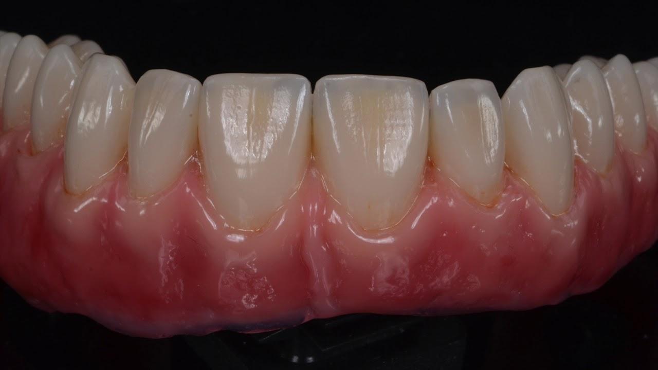 Telescopic denture kombi technik youtube