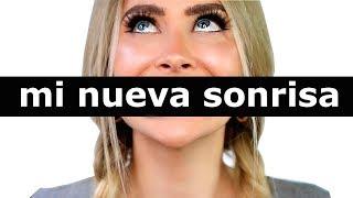 CAMBIO RADICAL DE SONRISA 😱 MIS NUEVOS DIENTES