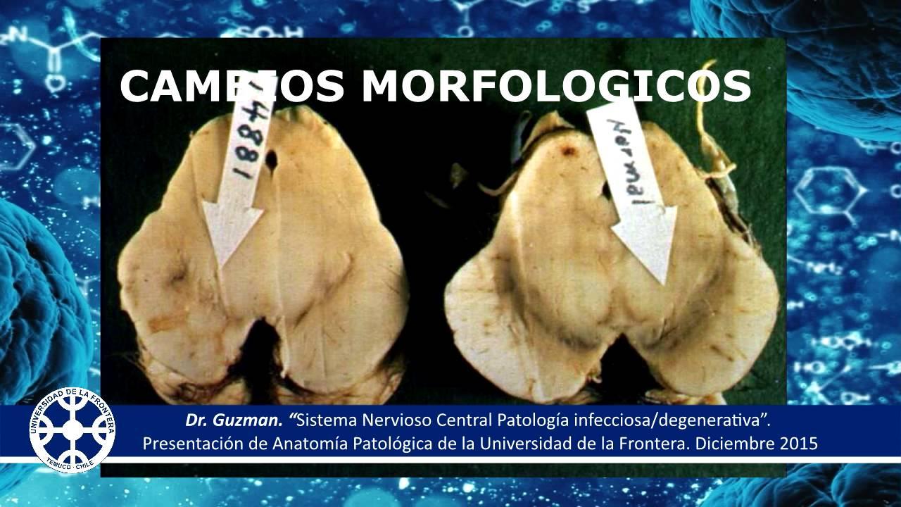 Enfermedad de Parkinson | Anatomia Patologia | Universidad de la ...