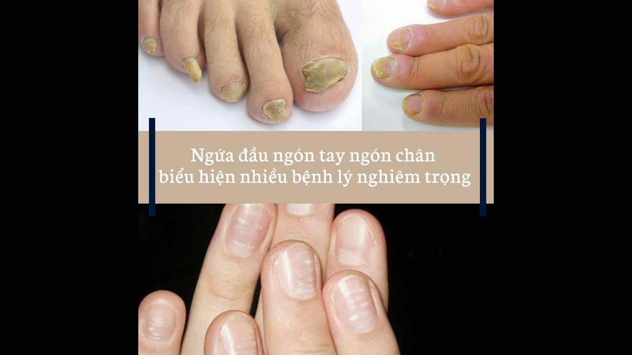 Ngứa đầu ngón tay ngón chân là bệnh gì?