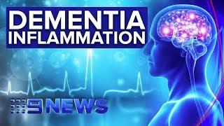 Gambar cover New drug trial targeting inflammation to combat brain disease | Nine News Australia