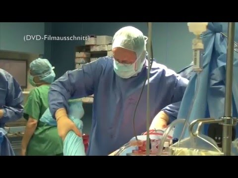Die künstliche Hüfte (TEP) - Prävention, Operation, Reha