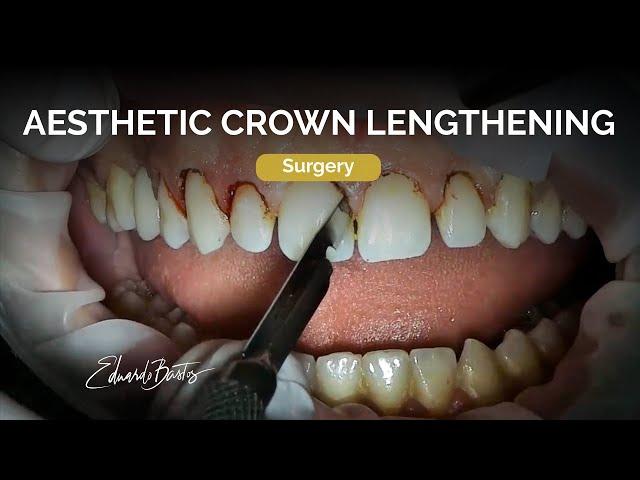 Aesthetic crown Lengthening
