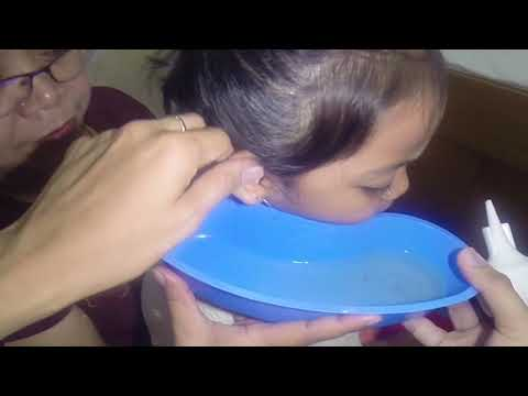 Earwax and Dirt in Little Girl's Ear is Finally Removed by Ear Irrigation