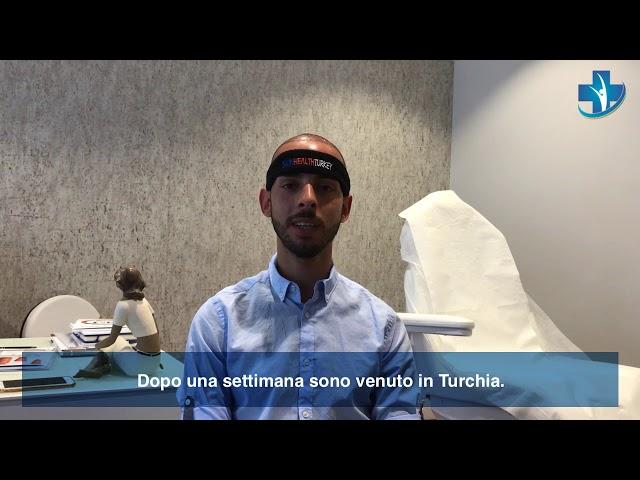 Trapianto Capelli Turchia - Testimonianza di Julio - Dott.ssa. Oyku CELEN / Skin Health Turkey