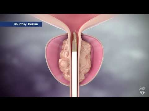 mayo-clinic-minute:-steam-treatment-for-enlarged-prostate