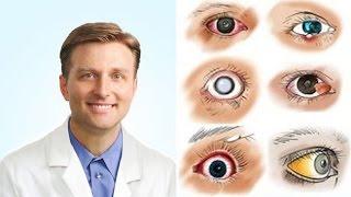 gyógyítja a szem parazitáit)